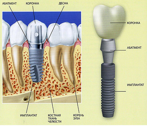 Имплантация зубов в Южном Подмосковье